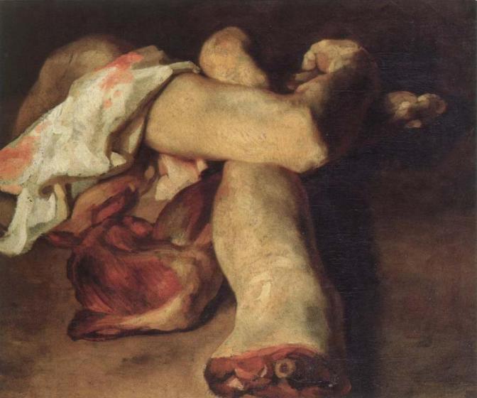 Géricault. Estudio de miembros amputados.